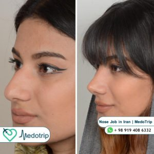 Nose Job in Iran - Before After - MedoTrip