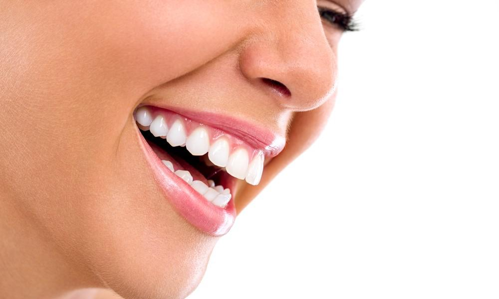Dental veneers in Iran - MedoTrip