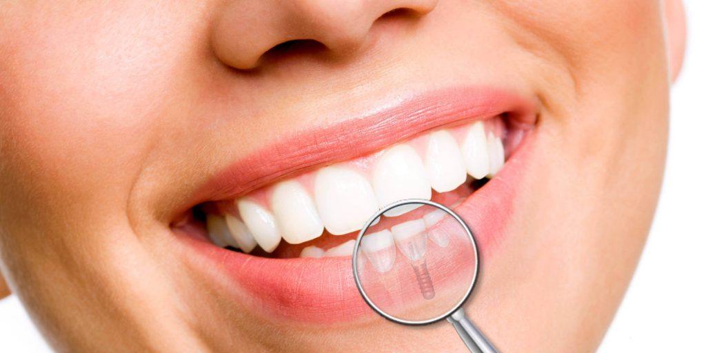 dental implants in Iran - MedoTrip