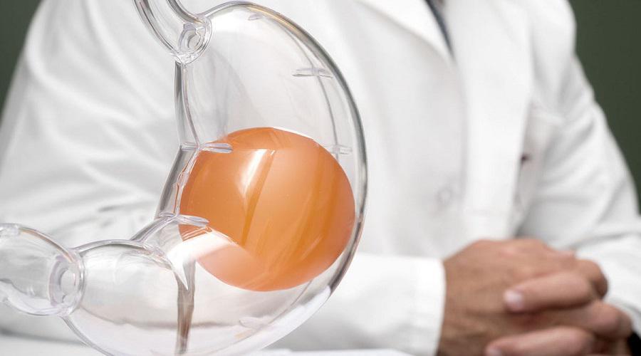 Gastric Baloon in Iran - MedoTrip